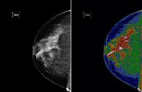 Mamogramların Gösterdiği 3 Yapı