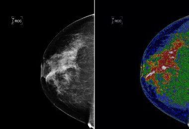 Doktorlar Mamogramları Nasıl Yorumluyor?