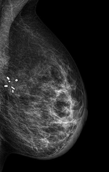 Farklı Meme Cerrahisi Sonrası Mamogramlar